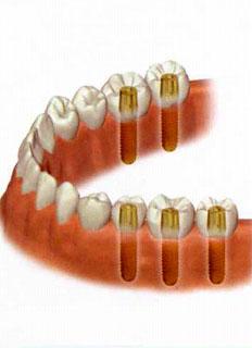 インプラント 部分入れ歯