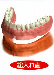インプラント 総入れ歯