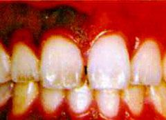 色素沈着のある歯肉の蒸散