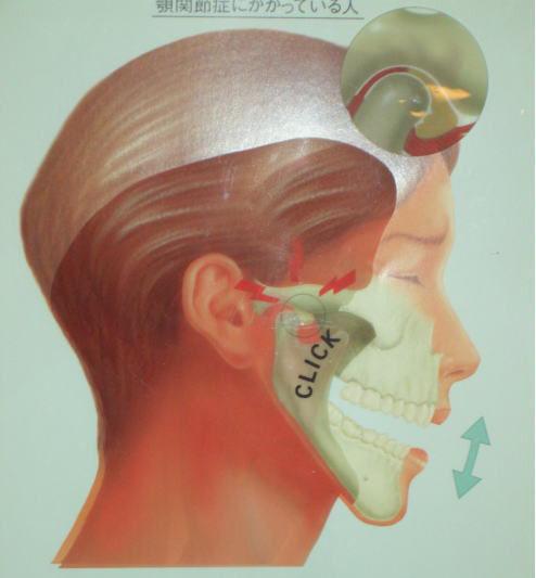 顎機能訓練