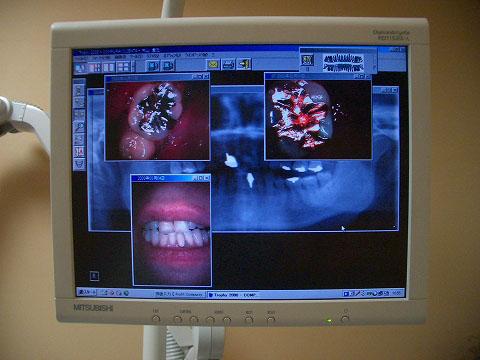 デジタルX線画像解析システム